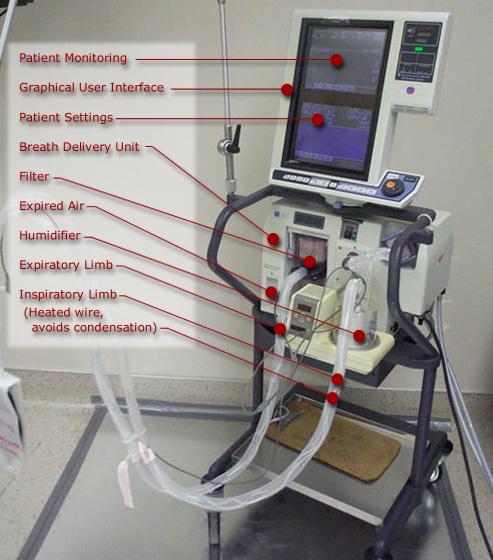 Parts Of Ventilator : The equipment mechanical ventilation